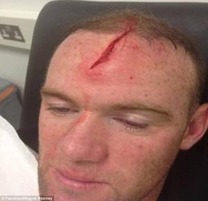 Rooney, ecco una delle immagini della sua ferita postate su Facebook